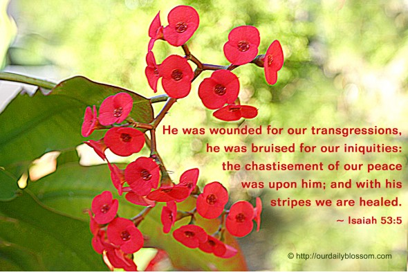 He was wounded for our transgressions, he was bruised for our iniquities:  the chastisement of our peace  was upon him; and with his stripes we are healed. ~ Isaiah 53:5